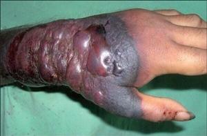 エボラ出血熱 症状 出血