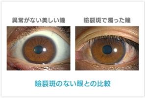 紫外線 瞼裂斑